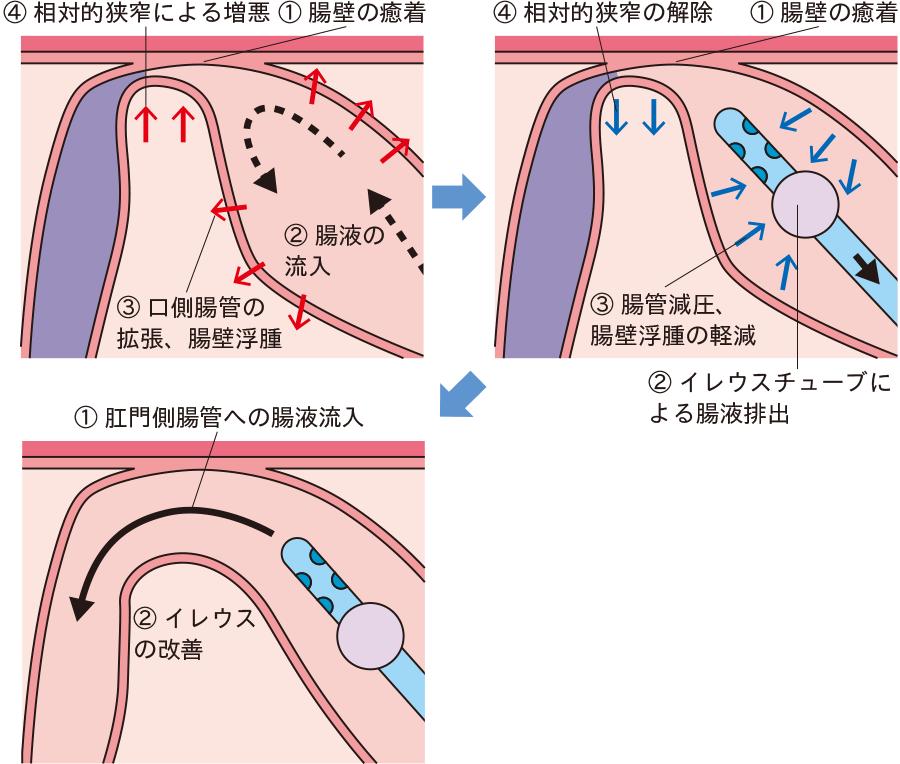 イレウスチューブによる腸閉塞解除の機序