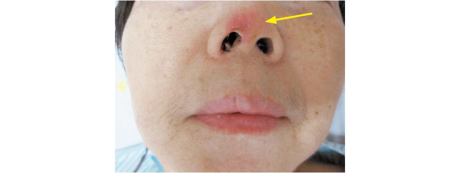 イレウスチューブによる鼻翼の潰瘍形成
