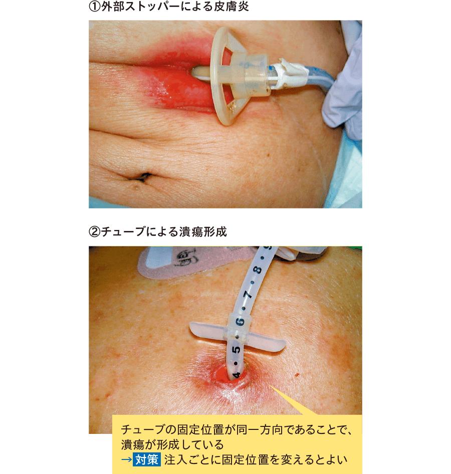 接触性皮膚炎・皮膚潰瘍