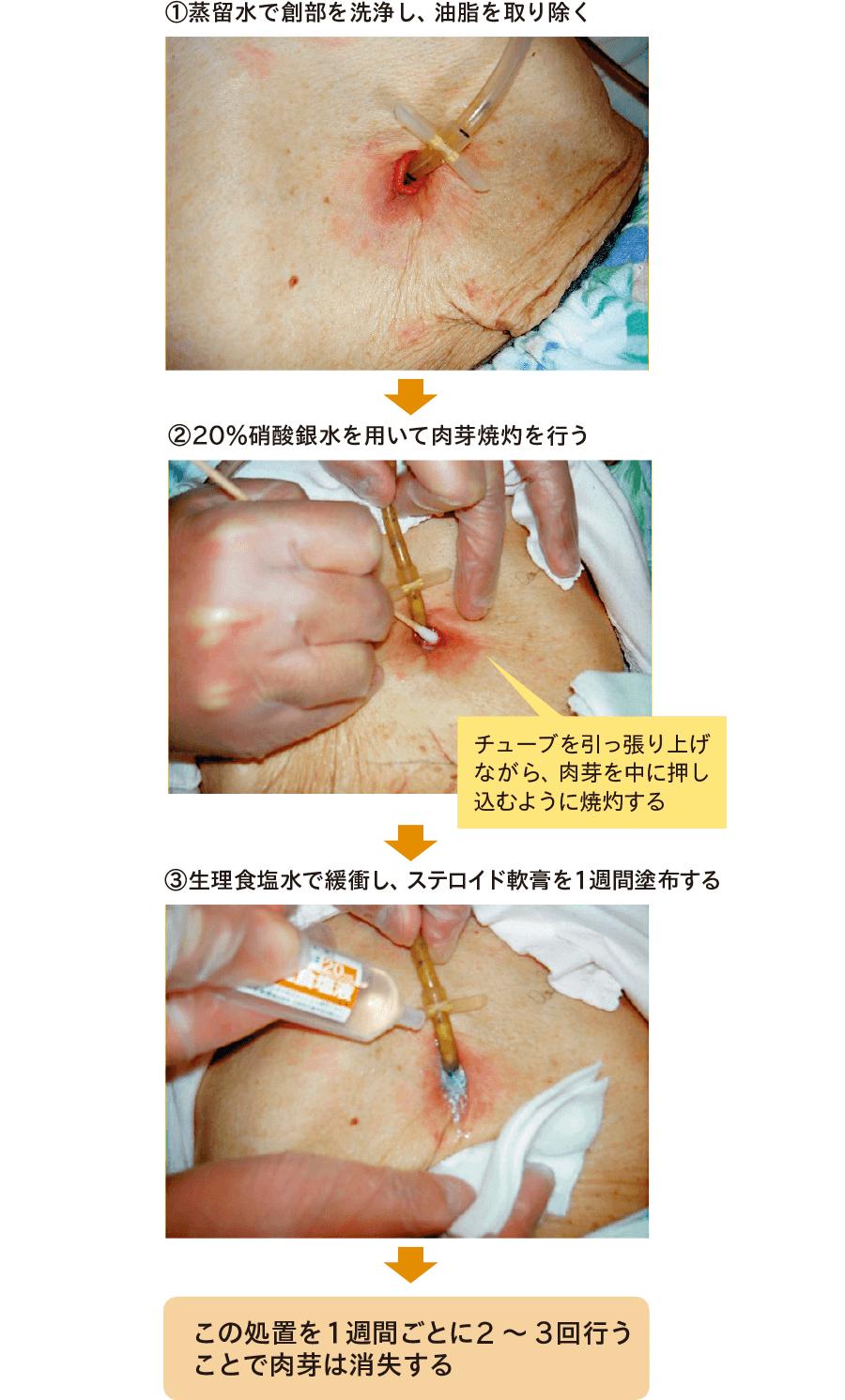 滲出液を伴う易出血性の肉芽の焼灼治療