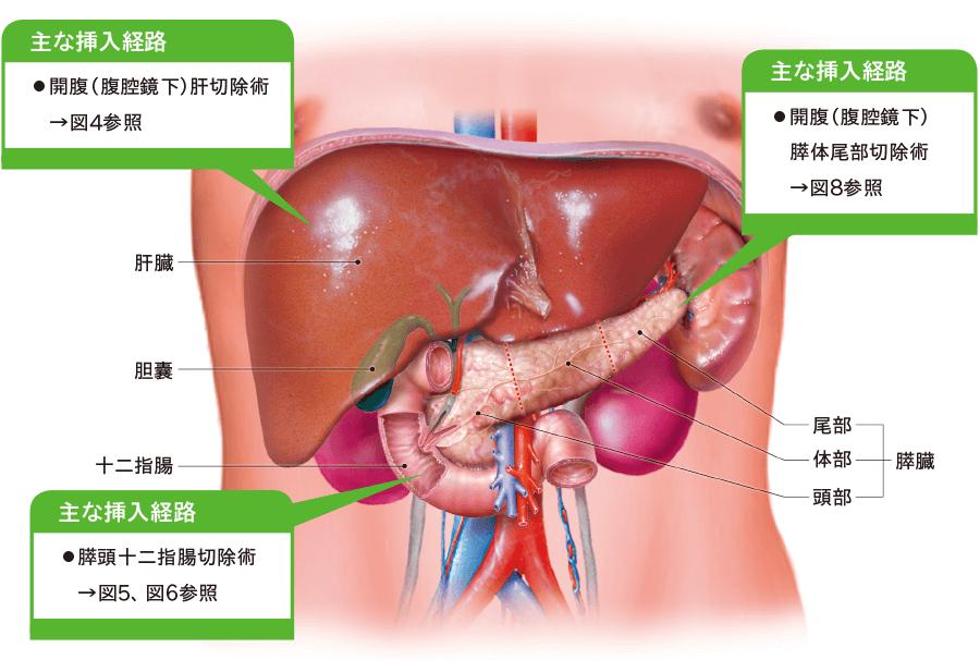 肝胆膵手術後ドレナージ