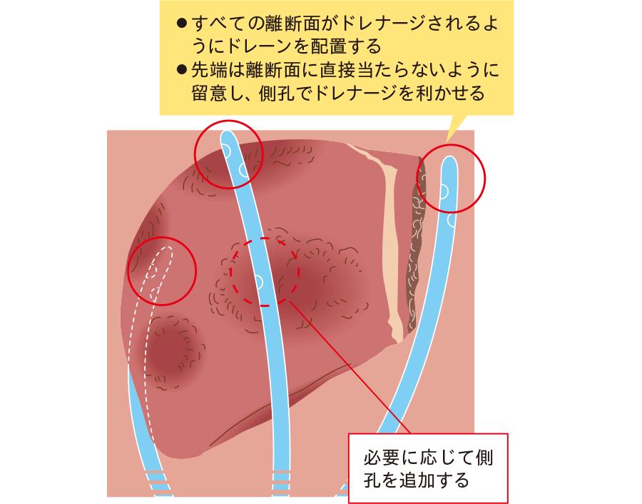 転移性肝癌に対する複数箇所の肝部分 切除後のドレーン留置法