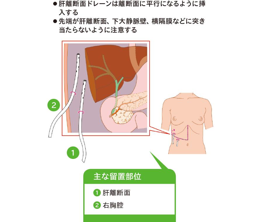 右肝(肝右葉)切除後のドレーンの配置