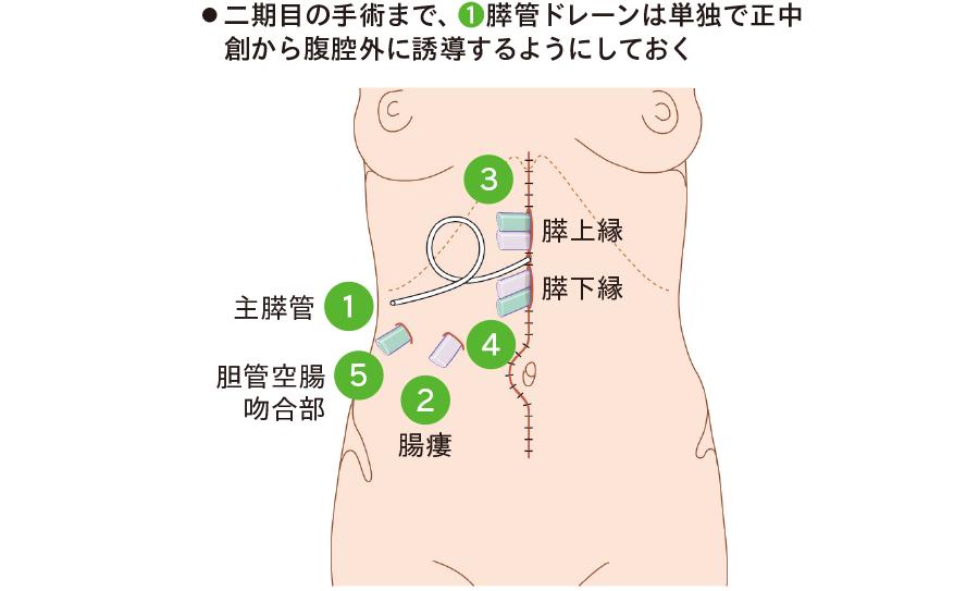 膵空腸吻合を二期的に行う場合(二期再建)