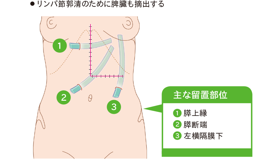 膵体尾部切除(DP)術後のドレーン留置位置