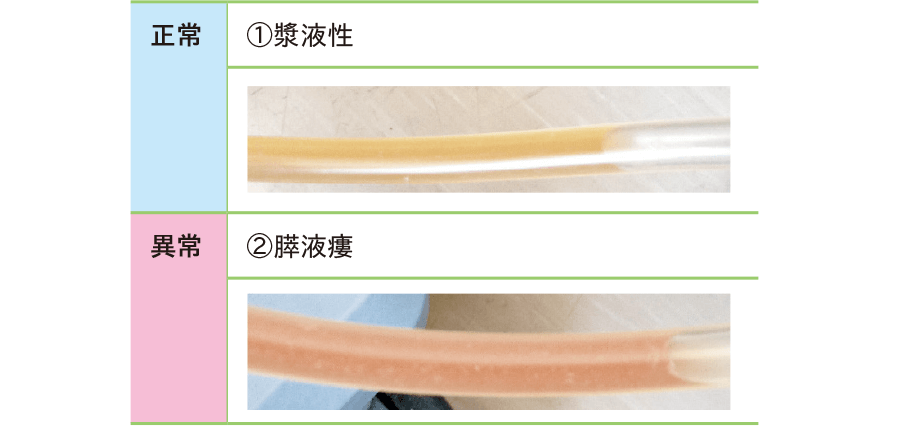 排液の色(一例)