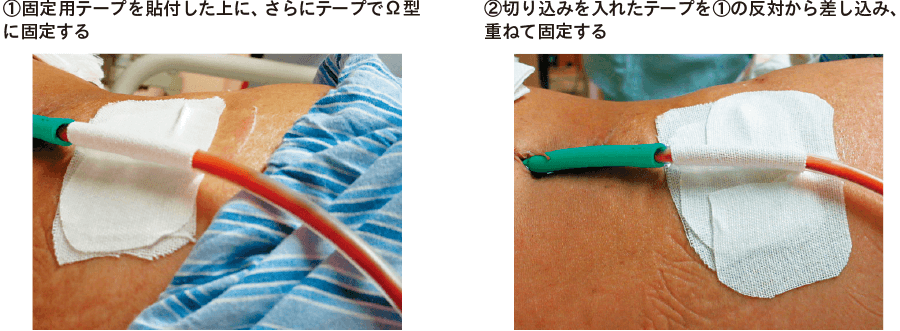膵断端ドレーン固定部の実際