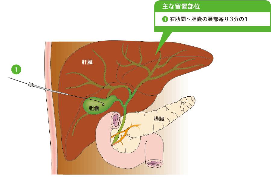 経皮経肝胆囊ドレナージ(PTGBD)