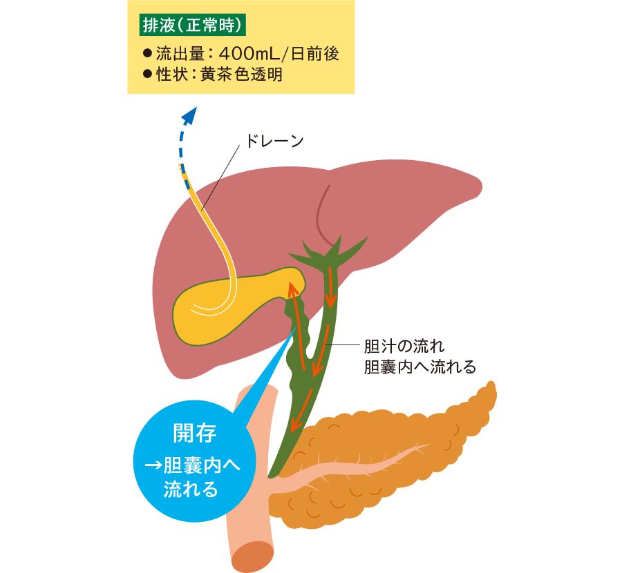 胆囊管が開存している場合