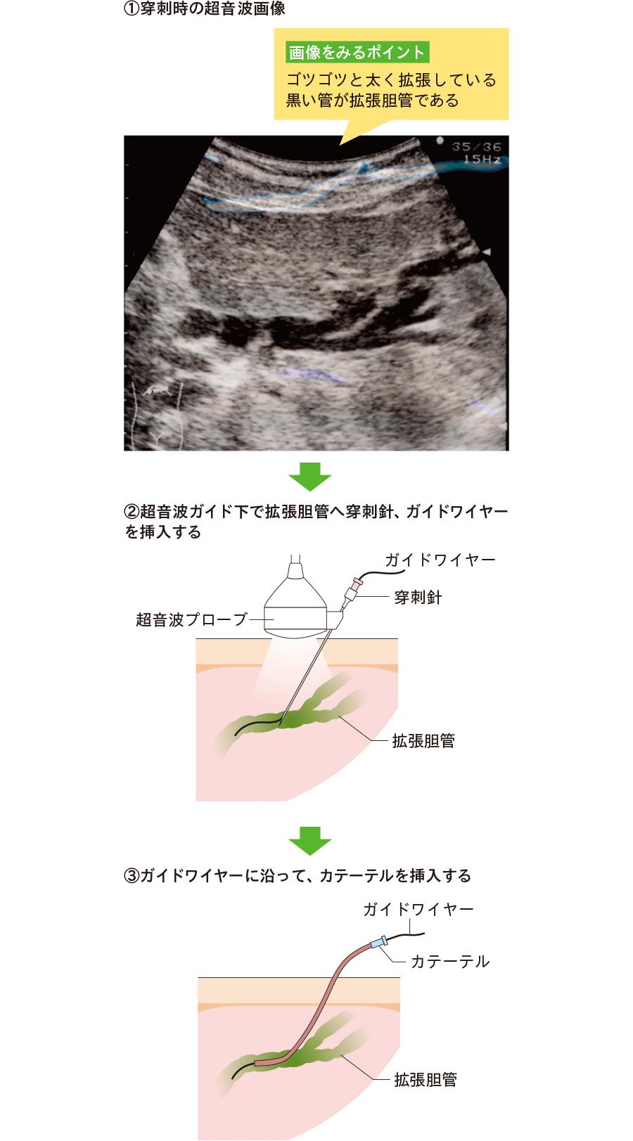 経皮経肝胆管ドレナージの穿刺方法