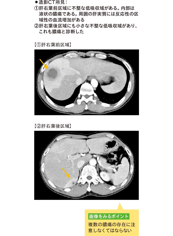 造影CT画像による肝膿瘍の診断