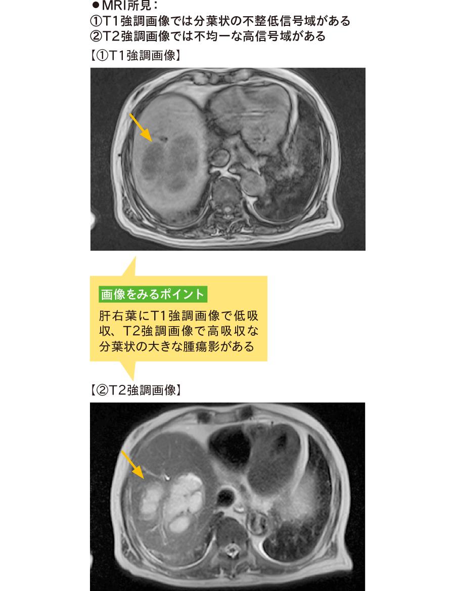 MRI画像による肝膿瘍の診断