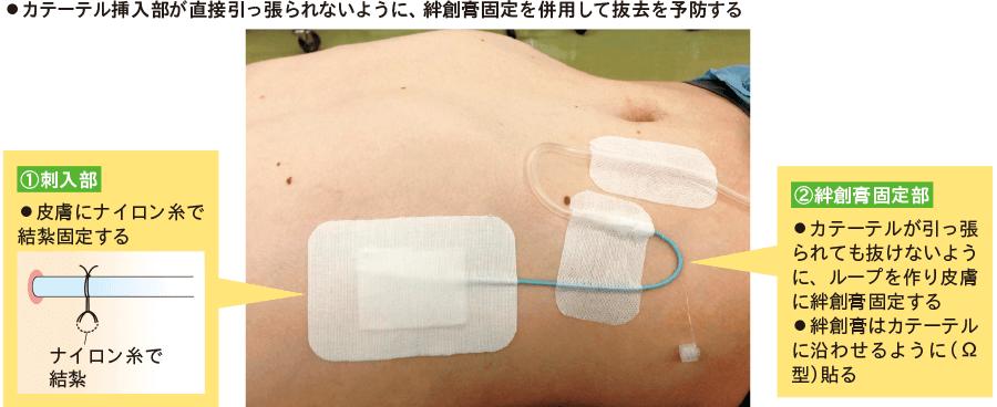 肝膿瘍ドレナージの固定方法
