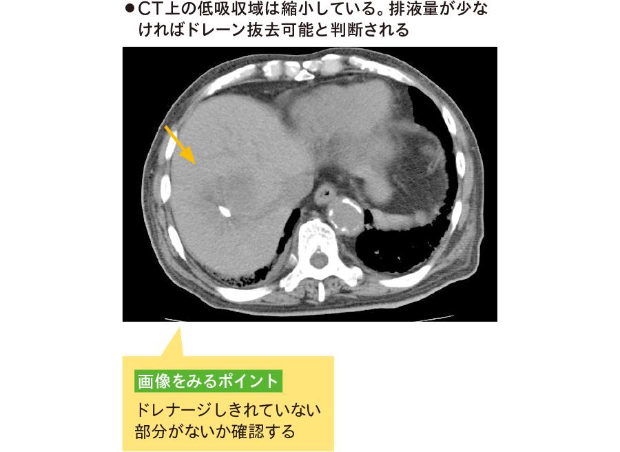 肝膿瘍のドレナージ後のCT画像