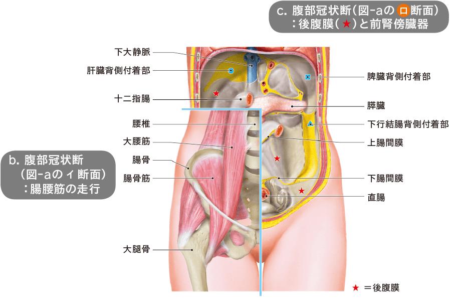 後腹膜膿瘍ドレナージ