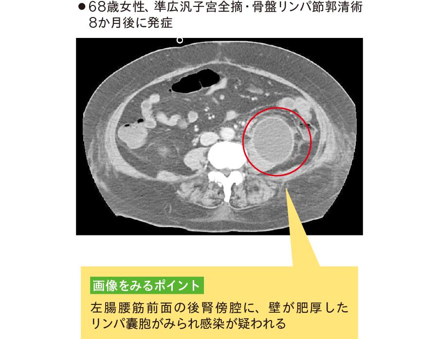 後腎傍腔感染性リンパ囊腫