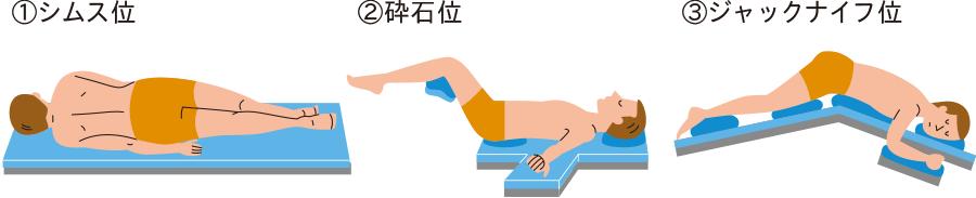 局所麻酔下切開排膿術の体位