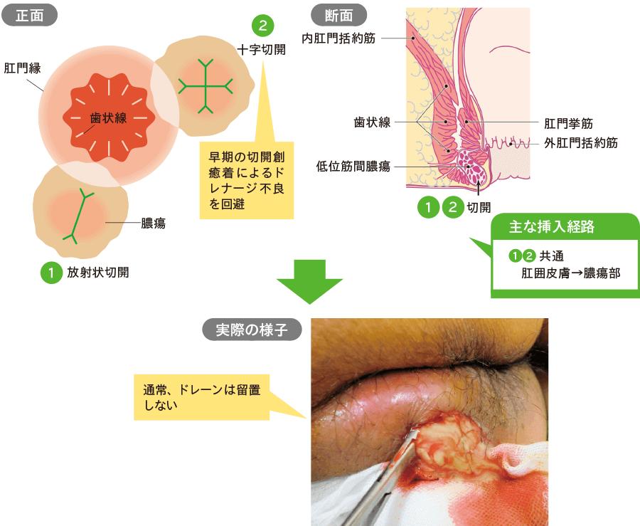低位筋間膿瘍ドレナージ(局所麻酔下切開排膿術)の方法