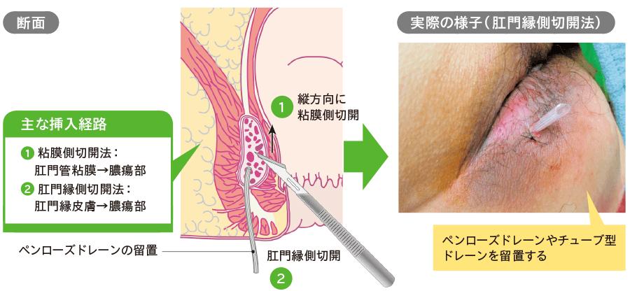 高位筋間膿瘍ドレナージの方法
