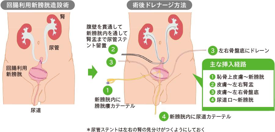 膀胱瘻(回腸利用新膀胱)