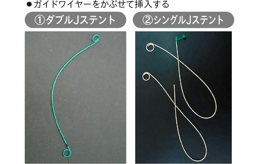ダブル・シングルJステント(一例)
