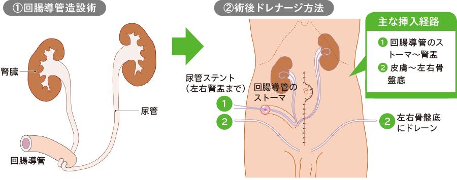 尿管ステント②(回腸導管造設術)