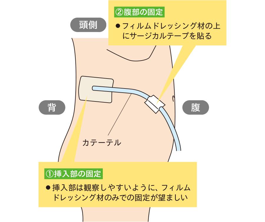 腎瘻カテーテルの固定