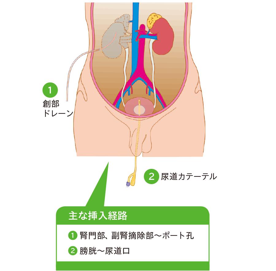 腹腔鏡(後腹膜鏡)下腎・副腎摘除術後ドレナージ