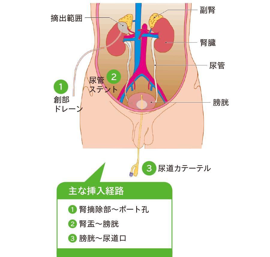 腹腔鏡(後腹膜鏡)下腎部分切除術後ドレナージ
