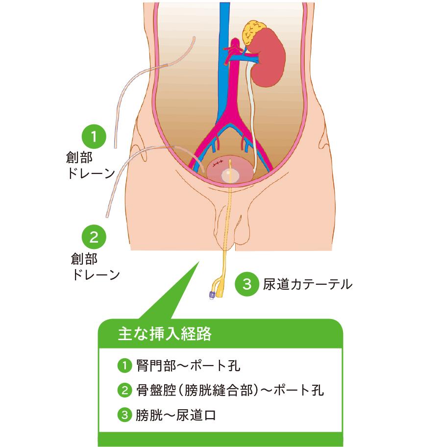 腹腔鏡(後腹膜鏡)下腎尿管全摘除術後ドレナージ