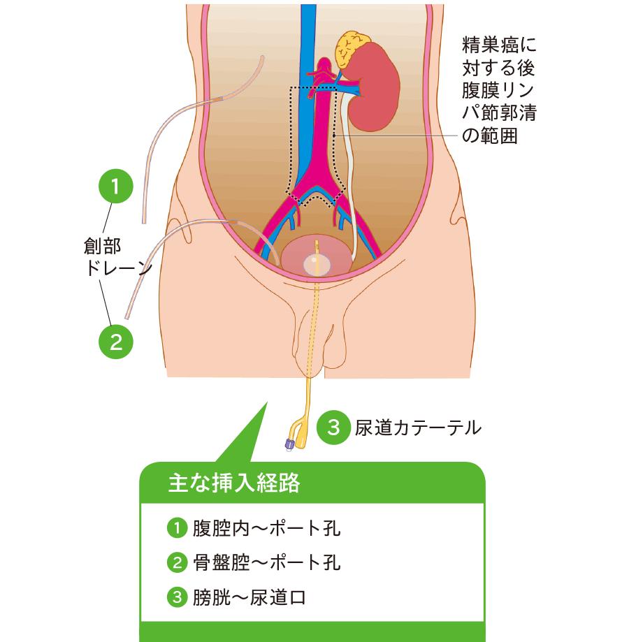 腹腔鏡下後腹膜リンパ節郭清術後ドレナージ
