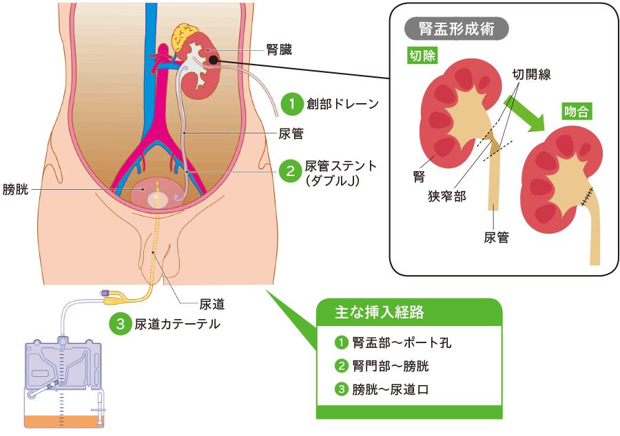 腹腔鏡(後腹膜鏡)下腎盂形成術後ドレナージ