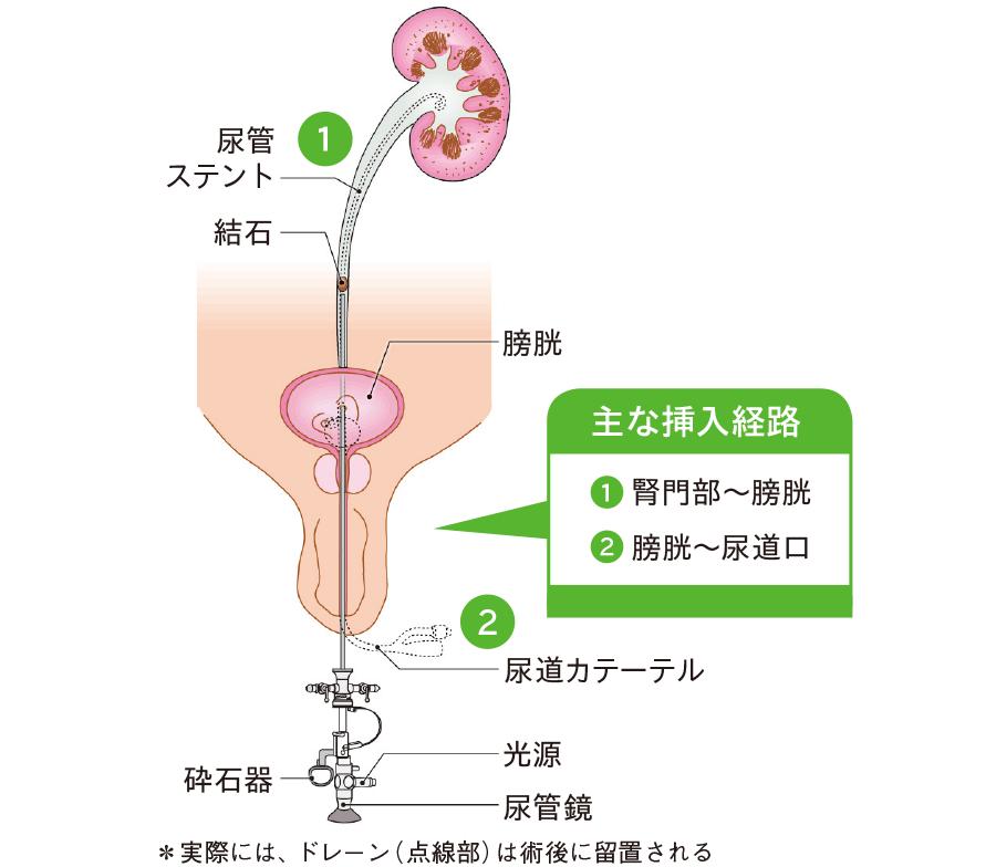 経尿道的尿管砕石術(TUL)