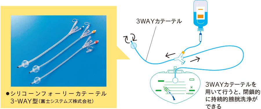 3WAYカテーテルによる持続的膀胱洗浄
