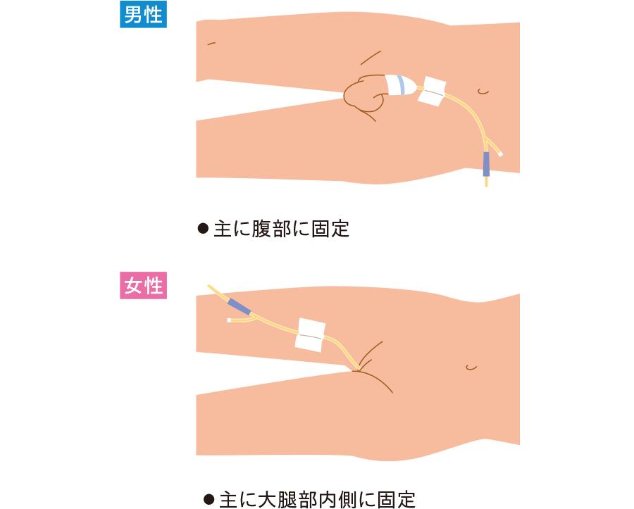 尿道カテーテルの固定方法