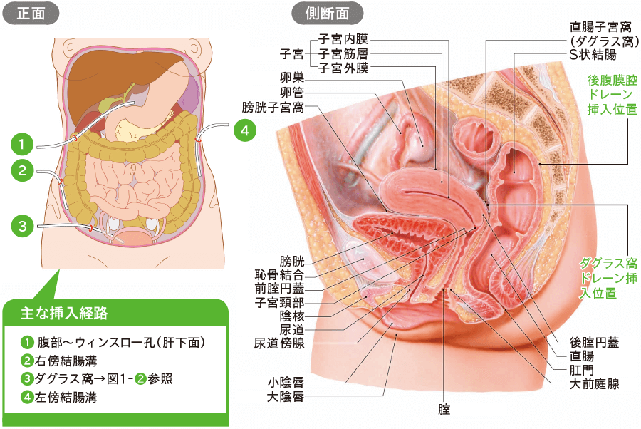 産婦人科の一般手術後ドレナージ