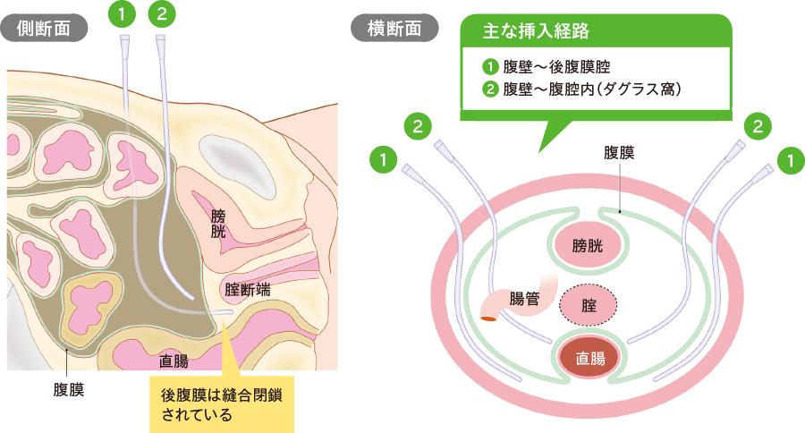後腹膜腔・腹腔内(ダグラス窩)ドレナージ