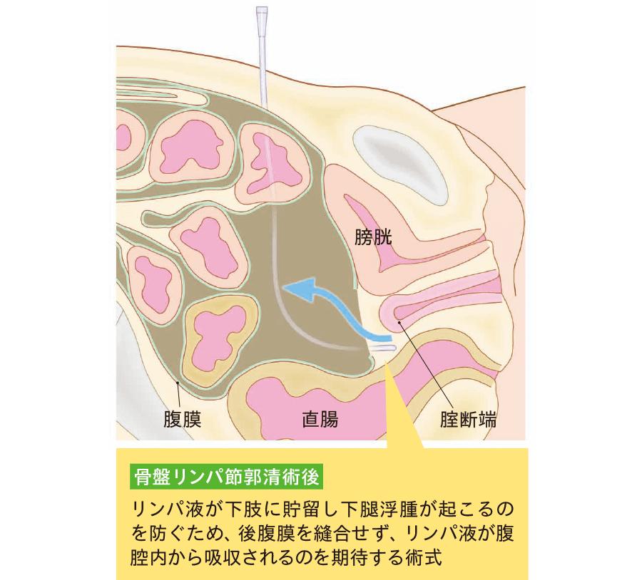 後腹膜が開放された後腹膜腔ドレナージ