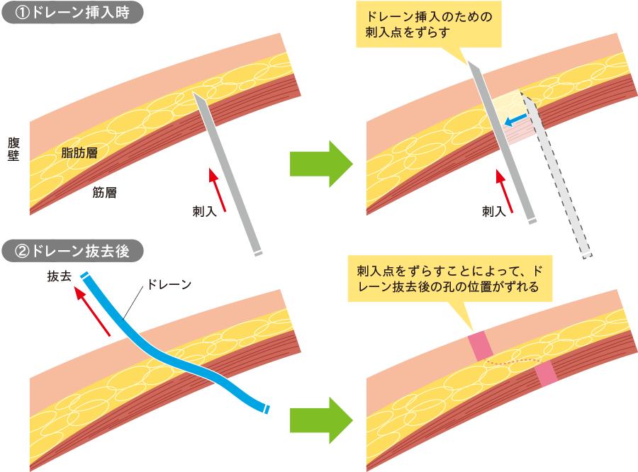 瘻孔形成・瘢痕ヘルニアを防ぐドレーン挿入経路の工夫