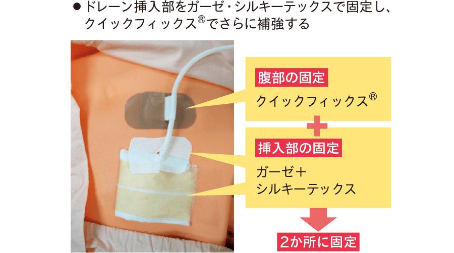 ドレーン挿入部の固定方法①