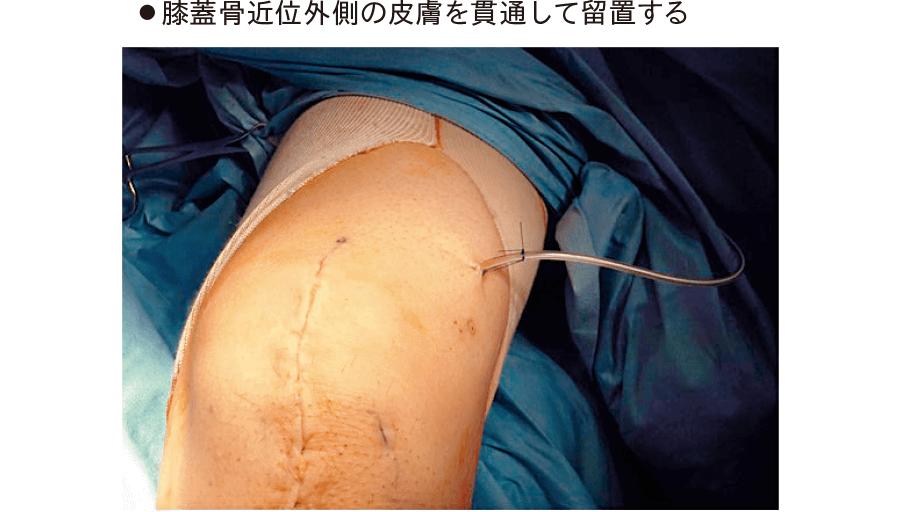 一般手術後の関節腔ドレナージ(膝関節)