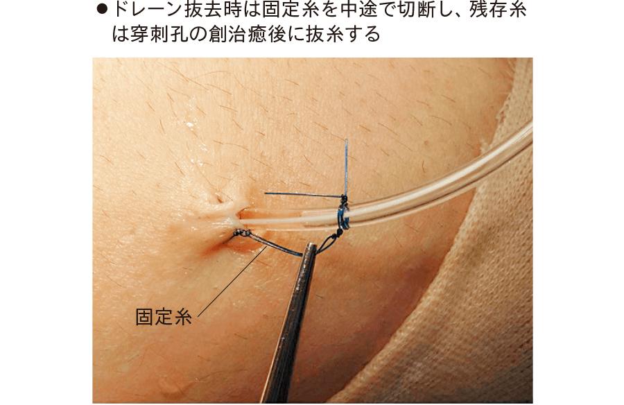 関節鏡視下手術後の関節腔ドレナージ(膝関節)