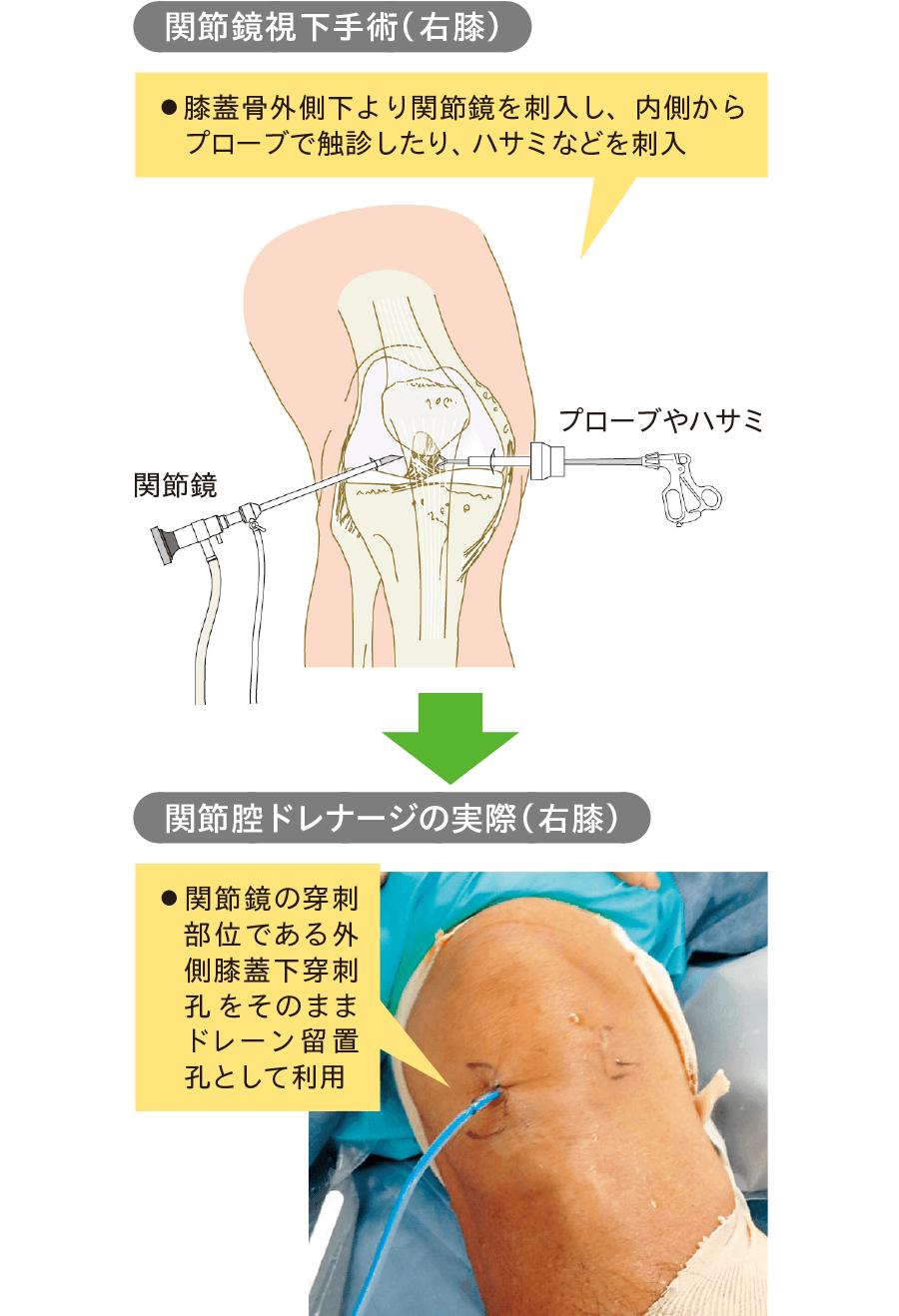 外側膝蓋下穿刺孔をドレナージ孔として利用した症例