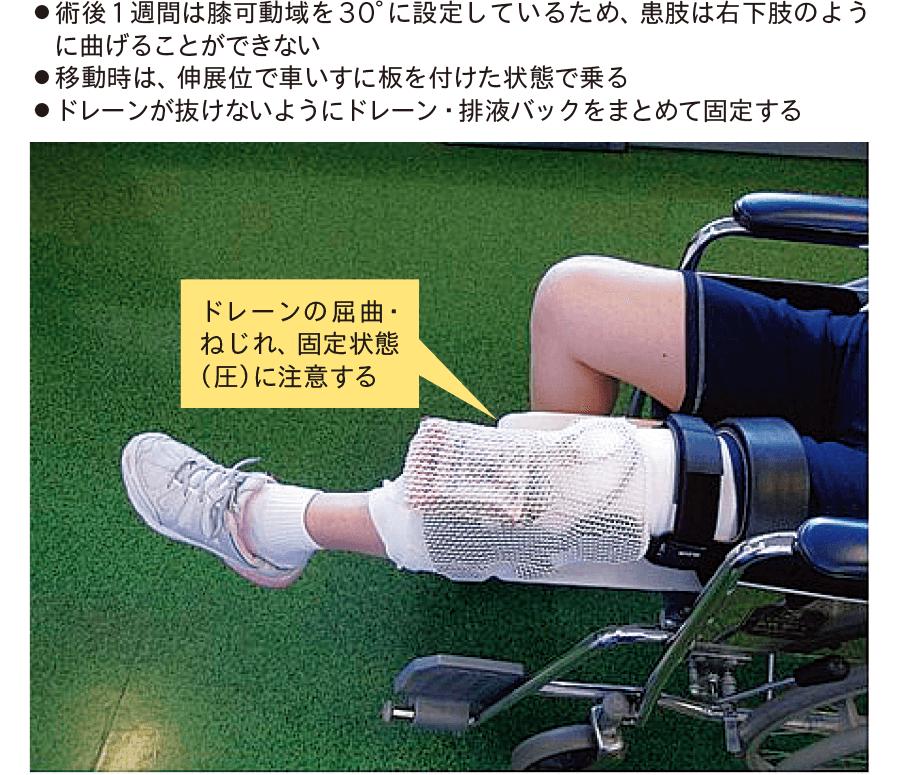 移乗・移動時の固定法(左前十字靱帯再建術後、プレイビー装具を装着中の例)