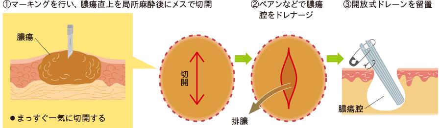 表層膿瘍に対する切開排膿ドレナージ