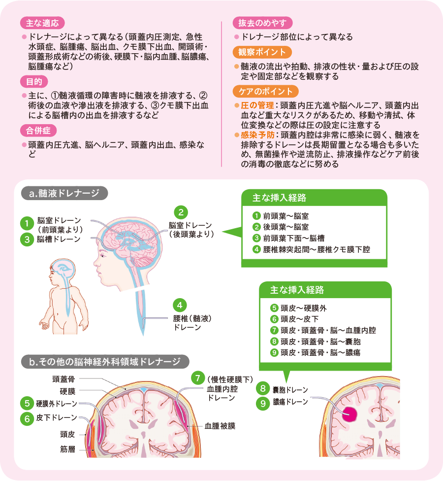 脳神経外科領域のドレナージ