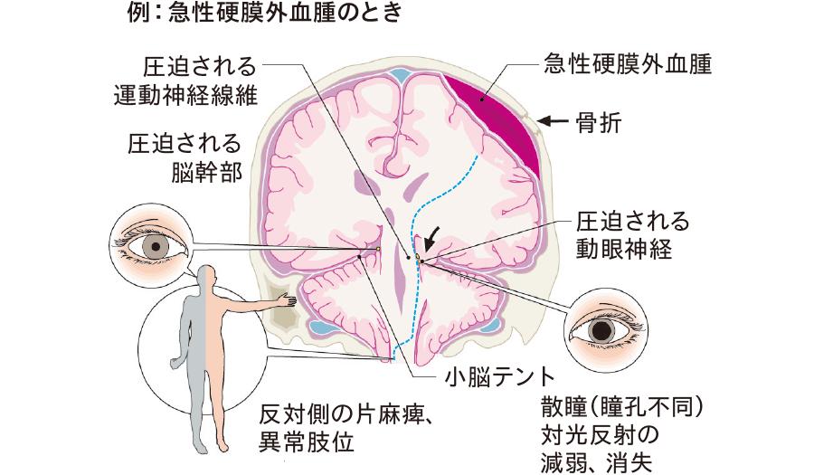 代表的な脳ヘルニア(鈎ヘルニア、テント切痕ヘルニア)