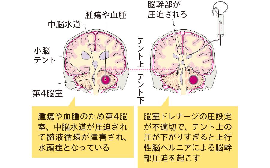 脳室ドレナージによる頭蓋内圧のコントロール