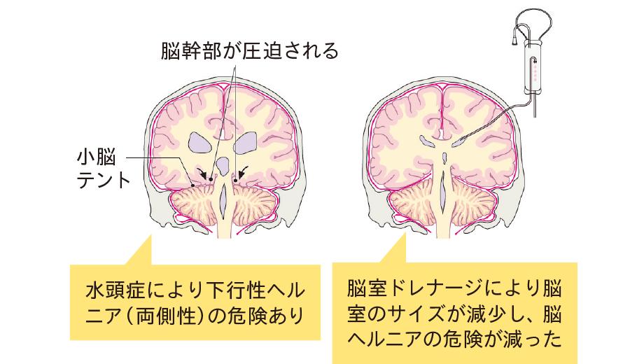 脳室ドレナージによる髄液の排除