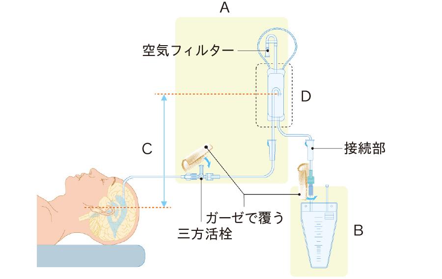 髄液ドレナージの回路